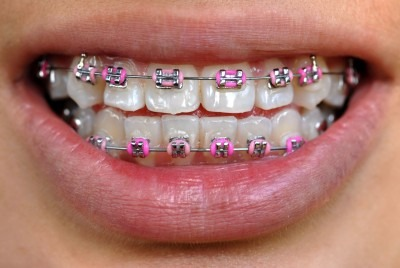 Is Your Child Ready For Metal Braces?