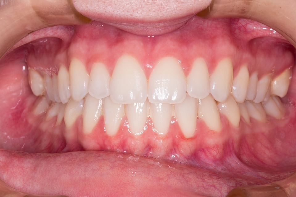 Braces and Root Resorption