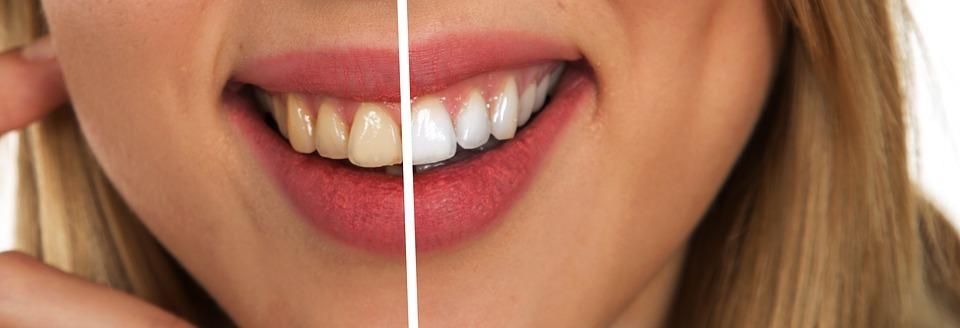 Make-up Tricks for Whiter Teeth