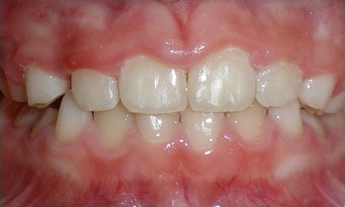 patient with a crossbite after treatment