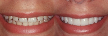 Photo credit: Dr. Alper, DMD, Cosmetic Dentist / Foter / CC BY