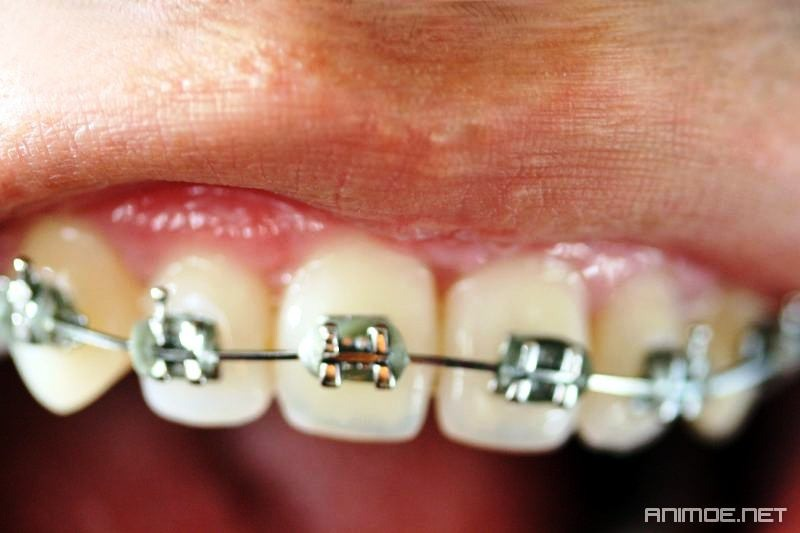 What Are the Signs That Braces May Be Needed?