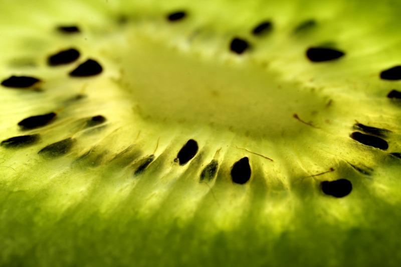 Teeth-Friendly Fruits & Vegetables No. 3: Kiwifruit