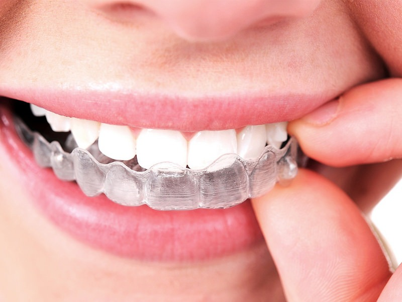 What Are the Other Options if You Don't Want Traditional Metal Braces?