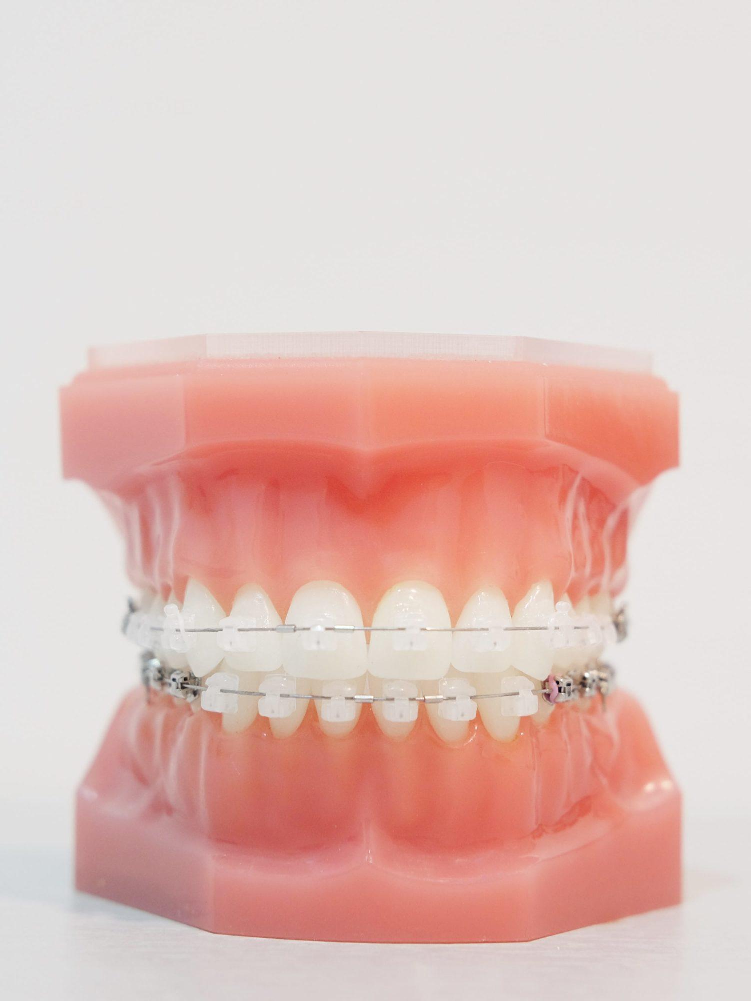 ceramic braces model