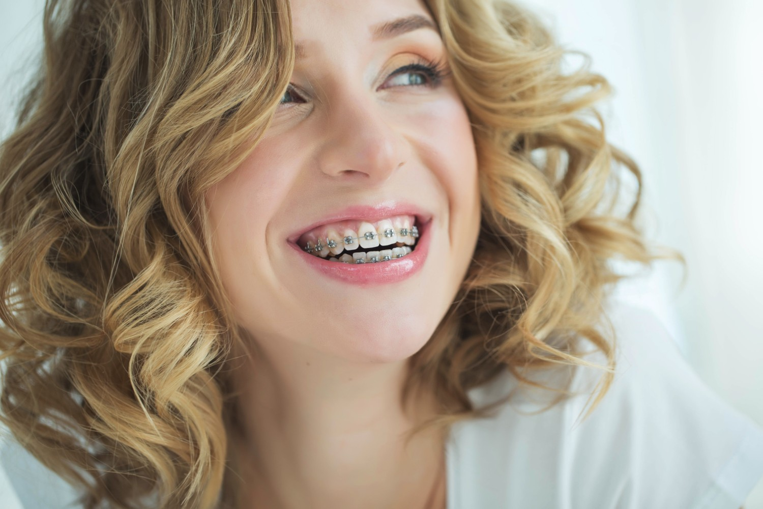 What Are The Benefits Of Braces Beyond Straight Teeth?