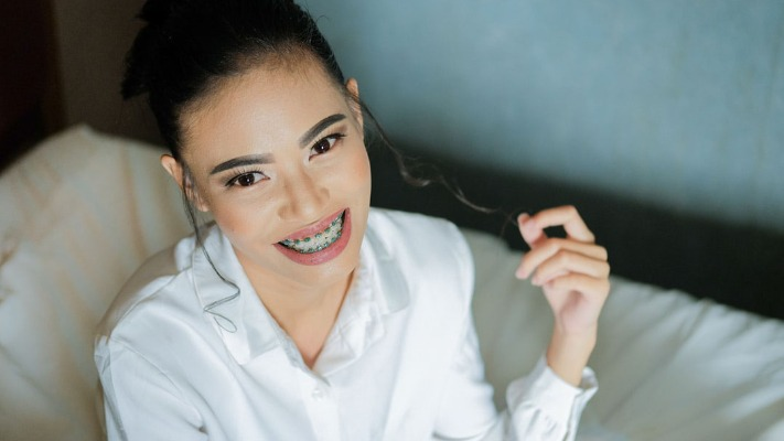 What You Need to Know About Clear Ceramic Braces